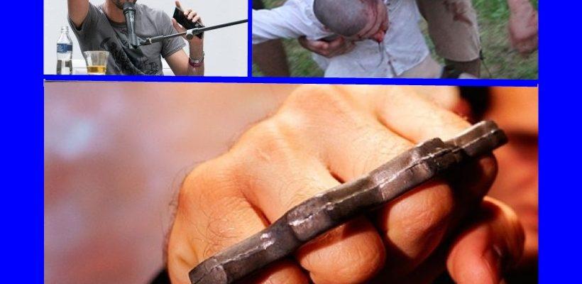 ИСТИНА ИЛИ НЕ: Счупиха черепа на Емил Джасим